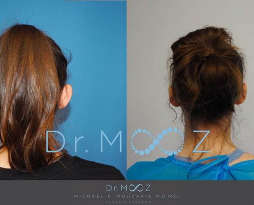 Ear Pinning Surgery for Women