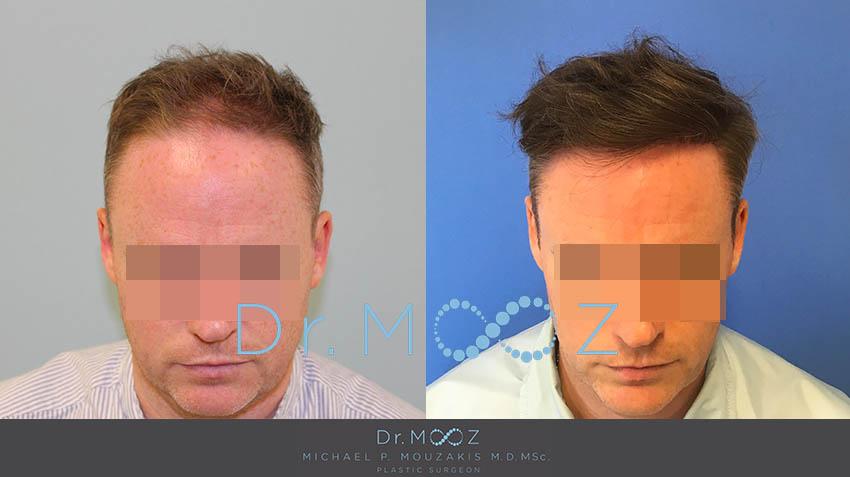 Hair Transplant 3300 Hairs