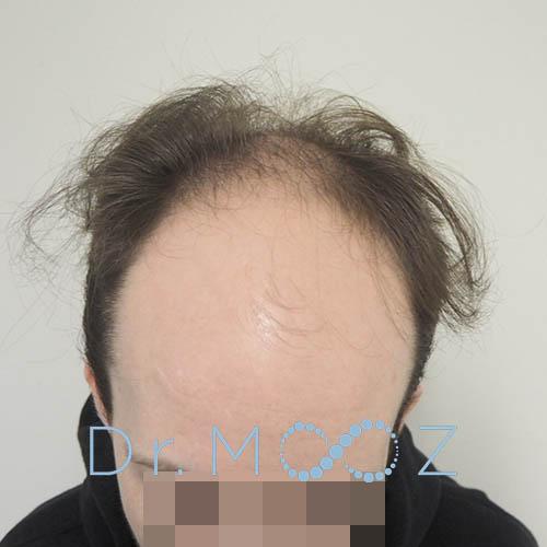 Hair Transplant for Younger Men