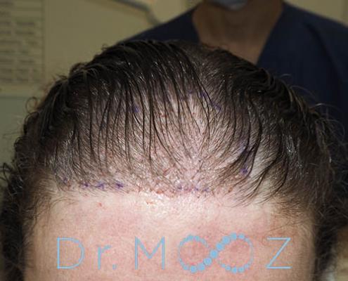 Female Hair Transplant Journey