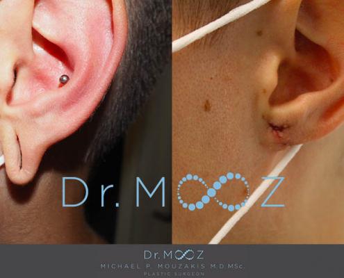 Bilateral Tribal Ear Repair Results